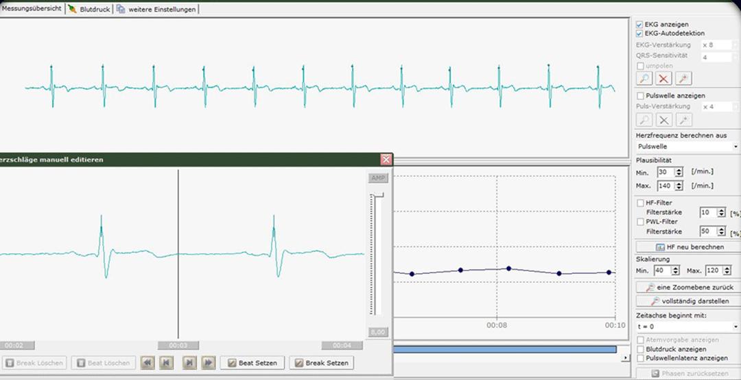 Messung der Herzratenvariabilität zur Bestimmung des ANS-Status (Autonomes Nervensystem)